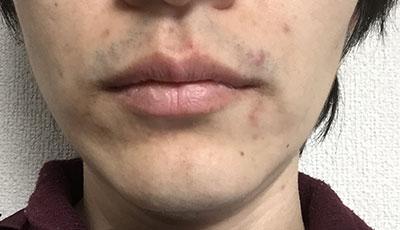 メンズヒゲ脱毛-脱毛前の肌の状態