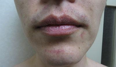 メンズヒゲ脱毛-脱毛後の肌の状態