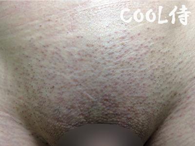 メンズVIO脱毛当日のVラインの肌の様子.psd